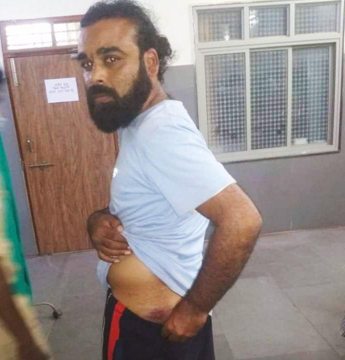 मध्यप्रदेश में वकील की पिटाई करने के बाद पुलिस ने बनाया दबाव कहा, मामला वापस ले लो, मुस्लिम होने की गलतफहमी के कारण चलाई थी लाठी
